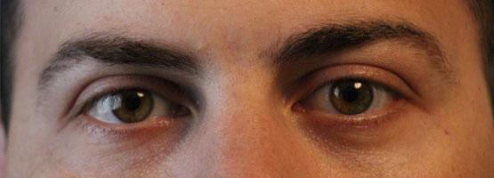 ojos-emdr